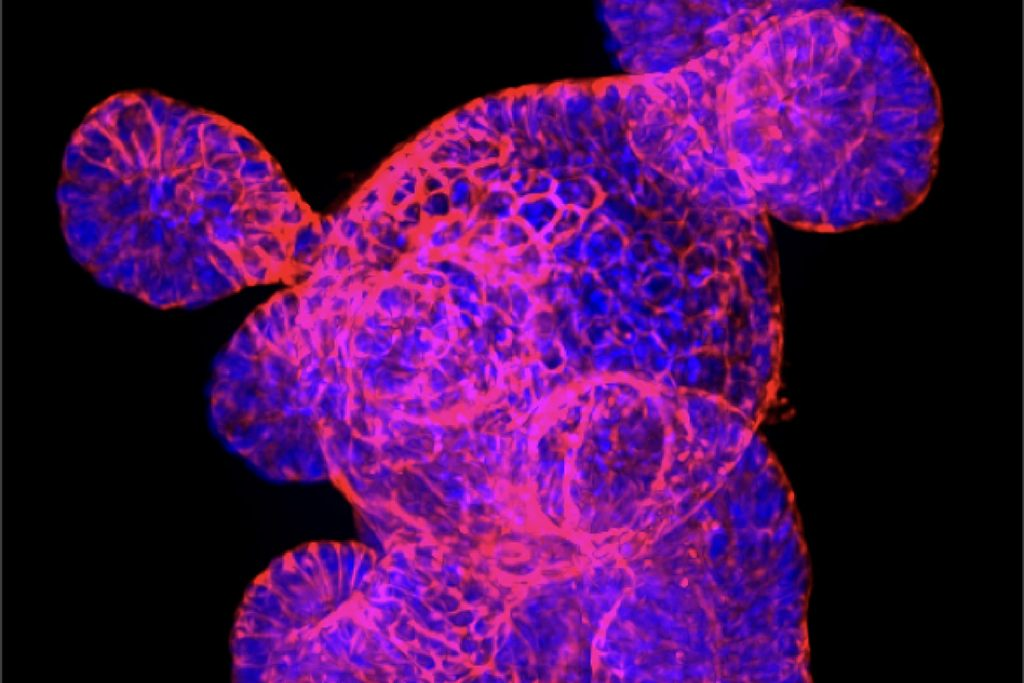Gut organoids are three-dimensional balls of intestinal tissues grown in the lab from stem cells that allow researchers to examine the role different types of cells play in bowel health. The red stain marks cell outlines, while DNA is shown in blue